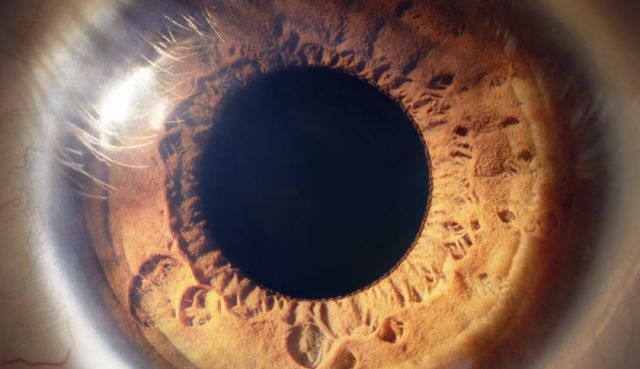Eye close-up