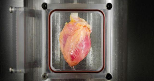 human-heart-transplant